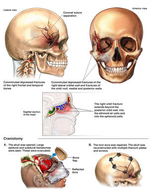 Post-accident Head Injuries with Craniotomy Surgery