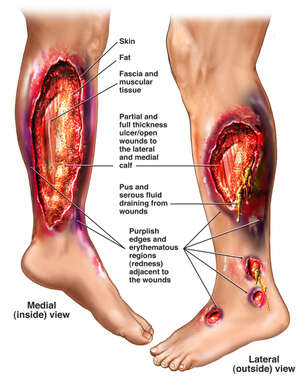 Necrotizing Fasciitis of the Left Lower Extremity