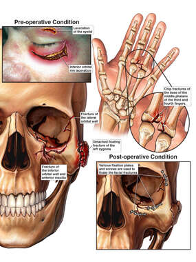 Fracture of the Left Eye Orbit and Hand