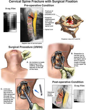 Cervical Spine Fracture with Surgical Fixation