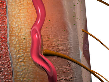 Arterial Supply of the Skin (Hair Follicle)