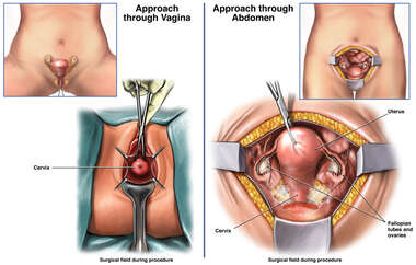 Vaginal vs Abdominal Hysterectomy