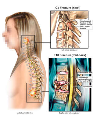 Female Torso with Post-accident Cervical and Thoracic Spinal Fractures