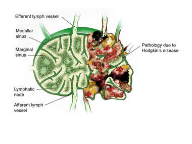 Anatomy of a Lymph Node: Normal vs. Diseased