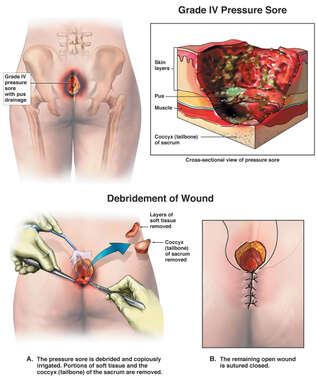 Grade IV Pressure Sore with Debridement of Wound