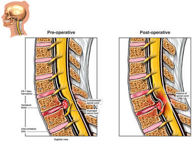 C6-7 Disc Herniation with Nerve Root Impingement