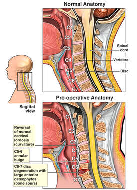 Cervical Spine Injury