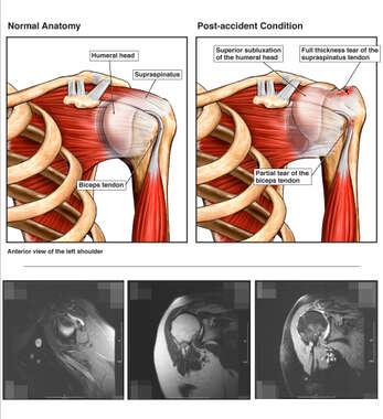 Search Left Shoulder Anatomy