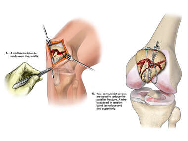 Surgical Repair of Left Knee Injuries