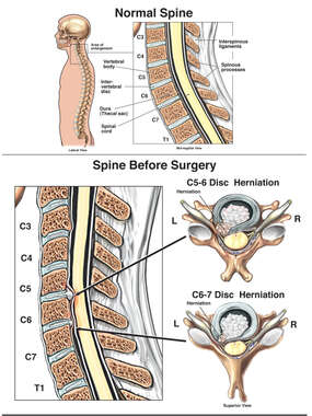 Herniated Cervical Discs in Comparison to Normal Conditions