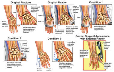 Collapse of Left Wrist Reduction