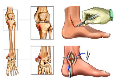 Left Knee and Ankle Fractures with Surgical Fixation