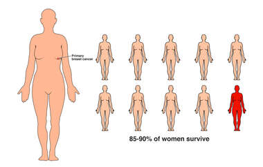 Stage 1 Breast Cancer