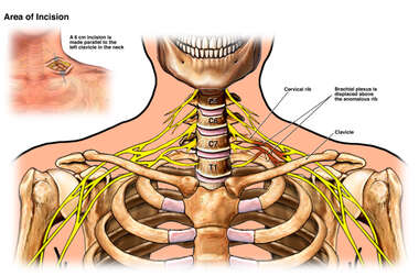 Brachial Plexus Injury Caused by Cervical Rib Anomaly