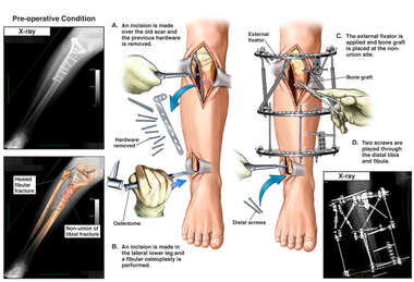 Tibial Non-union with Additional Surgical Repairs