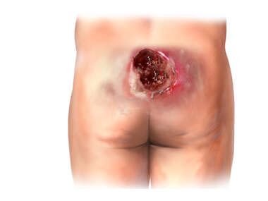 Sacral Pressure Ulcer (4 cm x 6 cm and 6 cm x 6 cm)