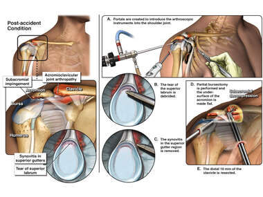 Right Shoulder Injuries with Arthroscopic Surgery