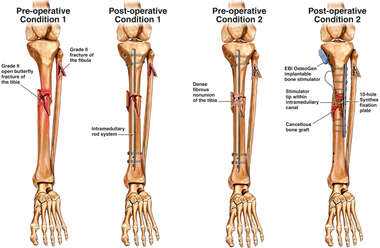 Progression of Left Lower Leg Condition
