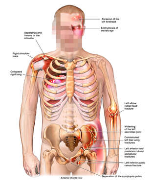 Male Figure with Post-accident Chest, Pelvis, Elbow and Shoulder Injuries