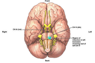 Regional Infarction of Brainstem