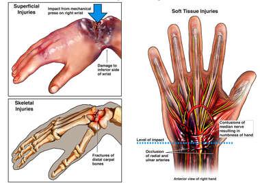 Severe Crush Injuries of Right Hand