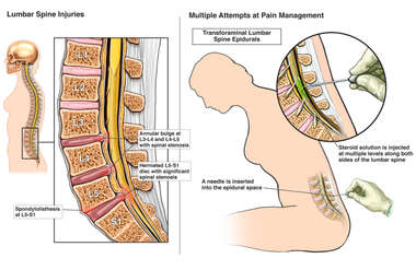 Lumbar Spine Injuries with Multiple Attempts at Pain Management