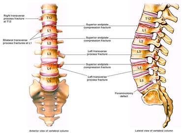 Post-accident Spinal Fractures at T12, L1, L2, L3, L4 and L5
