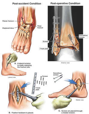 Broken Ankle - Displaced Trimalleolar Fractures with Fixation Surgery