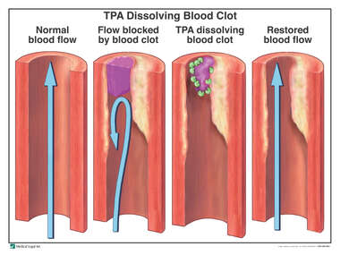 TPA Dissolving Blood Clot