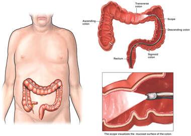 search colonoscopy