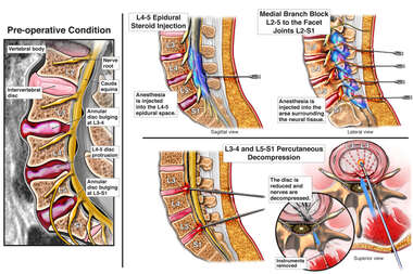 Lumbar Disc Injuries with Multiple Attempts at Pain Management