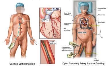 Cardiac Catheterization vs Open Coronary Artery Bypass Grafting (CABG)