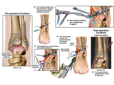 Surgery of Left Ankle with Mortise Spread and Malreduction