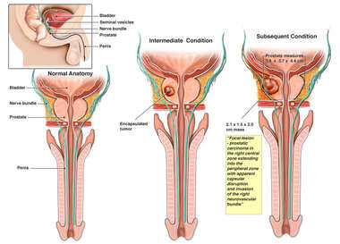 Progression of Prostate Cancer