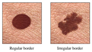 Skin Cancer Sign: Irregular Border on Mole