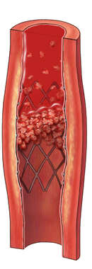 Stent with Clot