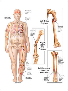 Female Figure with Immediate Post-accident Fractures to the Arm, Thigh and Leg