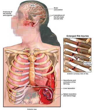 Female Torso with Post-accident Injuries to the Skull, Brain, Thorax and Abdomen