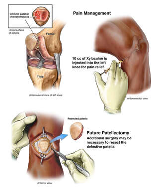 Future Patellectomy