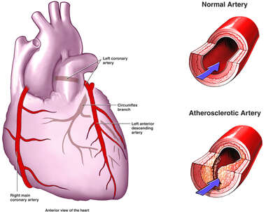 Normal vs. Atherosclerotic Artery