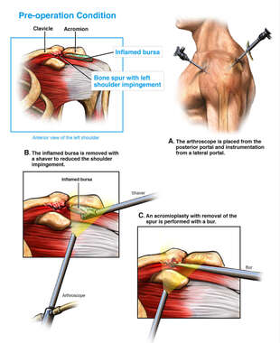 Left Shoulder Injuries with Arthroscopic Repair