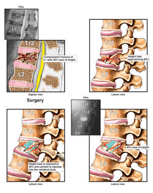 Loss of Vertebral Height Before and After Kyphoplasty