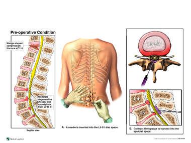 Post-accident Spinal Injuries with Lumbar Epidural Steroid Injection for Pain Management