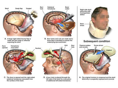 Right Subdural Hematoma with Craniectomy Surgery