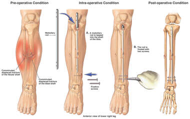 Post-accident Lower Leg Fractures with Surgical Intramedullary Rod Fixation