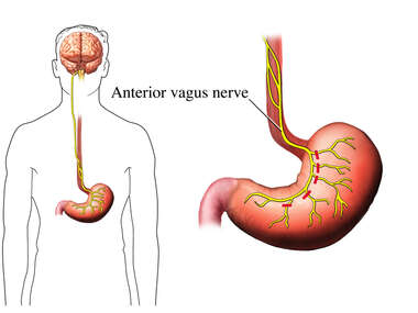 Anterior View of Vagotomy