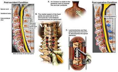 Cervical Discectomy and Fixation