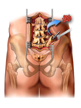 Bone Harvest from Iliac Crest - Posterior