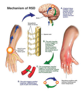 Post-Traumatic Reflex Sympathetic Dystrophy (RSD) of the Upper Extremity with Sympathectomy Surgery
