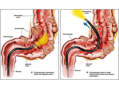 Colonoscopy of Sigmoid Colon with Diverticulitis